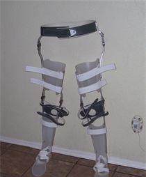 orthopedic-braces-in-el-paso